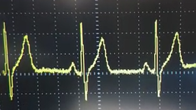 The obtained ECG signal displayed on an oscilloscope